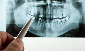 Panoramic X-rays | Holland Family Dental | Owatonna Dentist