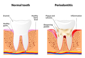 Periodontal Disease | Holland Family Dental | Owatonna Dentist