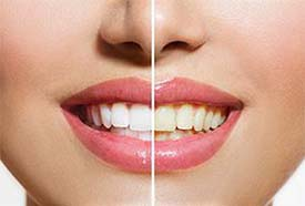 Tooth Whitening | Holland Family Dental | Owatonna Dentist