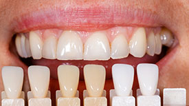 Porcelain Veneers | Holland Family Dental | Owatonna Dentist